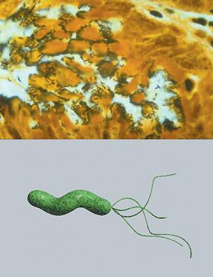 Рисунок. Гистологический препарат слизистой оболочки желудка больного сгастритом ибактерия Helicobacter pylori