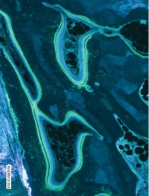 Образец биопсии пациентки, получавшей Бивалос® втечение 6 мес
