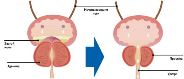 Эндуран™ МФ: избавляет мужчин от неприятного ощущения переполненного мочевого пузыря, помогает предупредить развитие аденомы предстательной железы