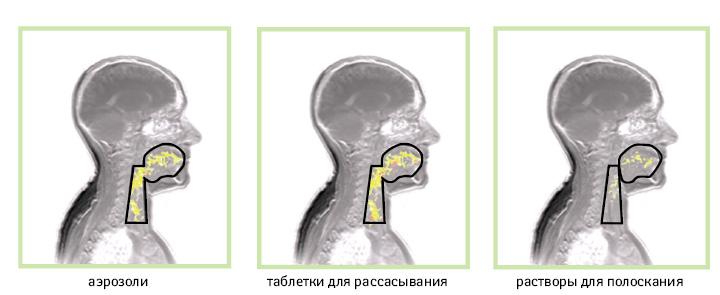 Особенности сохранения активного ингредиента наслизистой оболочке при использовании различных лекарственных форм лекарственных средств
