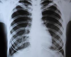 Частое использование дезинфицирующих средств может нанести вред органам дыхания