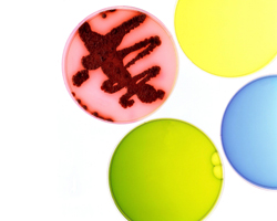 Ученые выяснили, почему вирус гриппа так быстро меняется