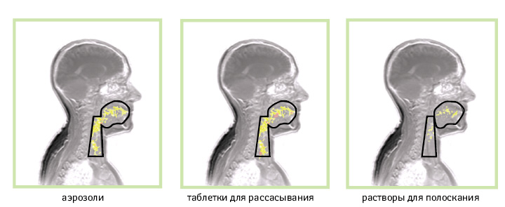 леденцы от боли в горле