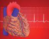 Какова вероятность внезапной остановки сердца вовремя физической нагрузки?