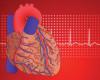 Почему у молодых женщин возникает инфаркт: ученые выявили новую возможную причину