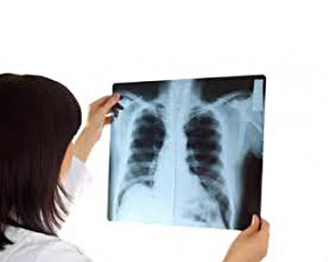 Залишкові симптоми перенесеного COVID-19 можуть зберігатися місяцями